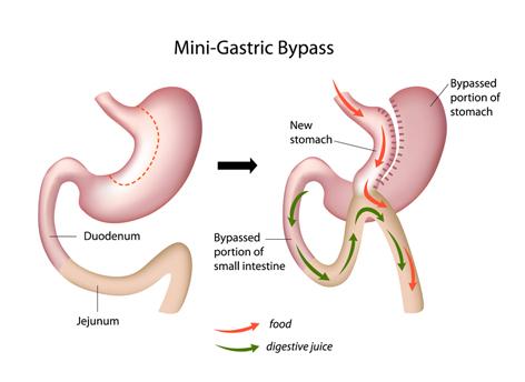 Χειρουργός Παχυσαρκιας
