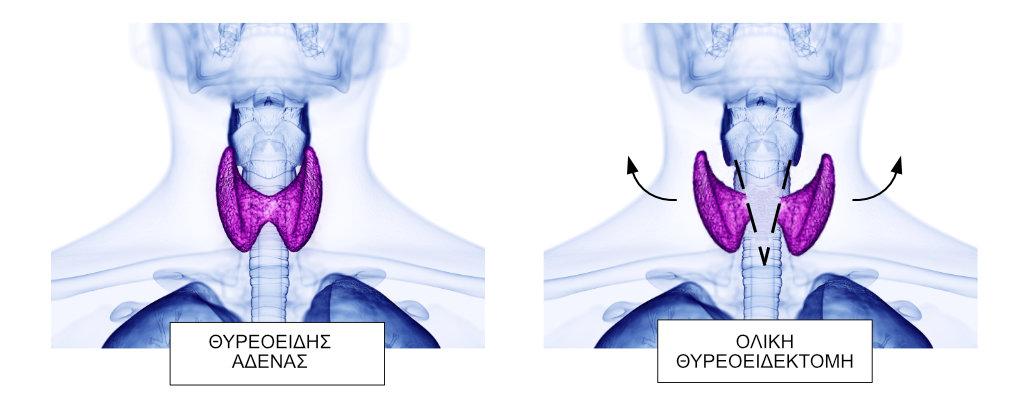 χειρουργός θυρεοειδούς | χειρουργος θυρεοειδους | χειρουργος θυροειδη