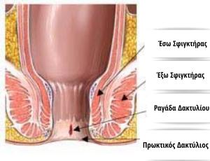 Χειρουργική Θεραπεία Ραγάδος Δακτυλίου