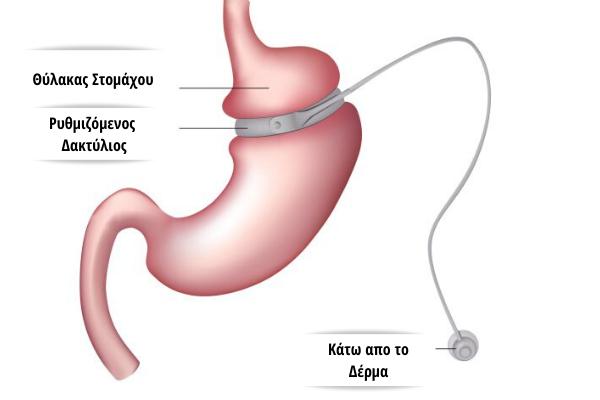 γαστρικός δακτυλιος- χειρουργος παχυσαρκιας