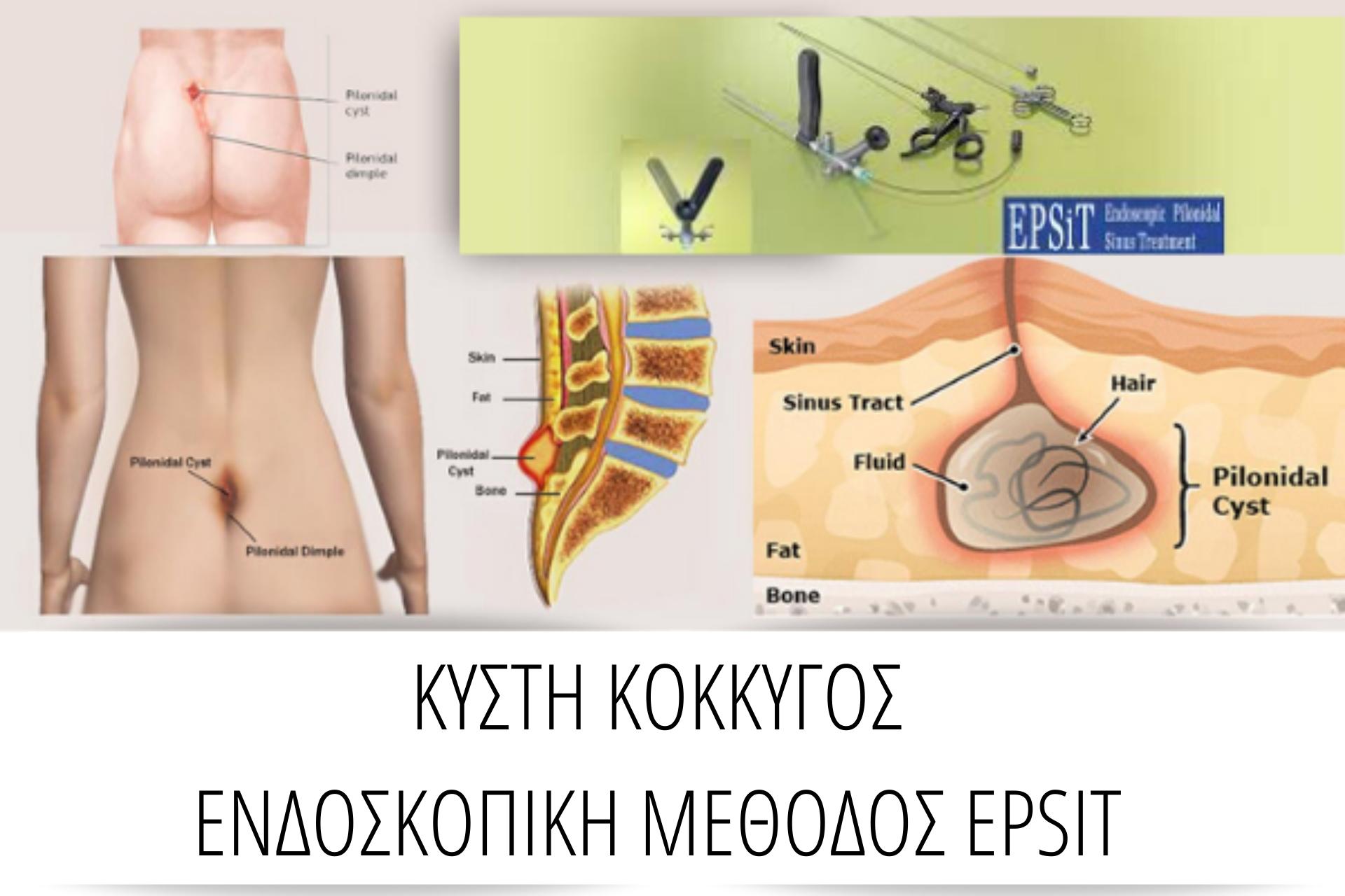 χειρουργος κυστης κοκκυγος - εγχείρηση κύστης κόκκυγος laser τιμη